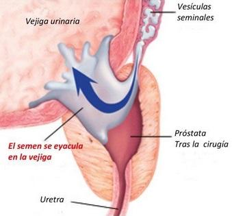 extirpación de próstata y eyaculación retrógrada 2020